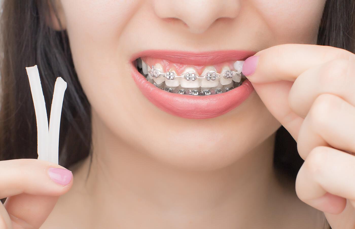 歯科用ワックス