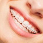 透明なブラケット装置を装着した歯