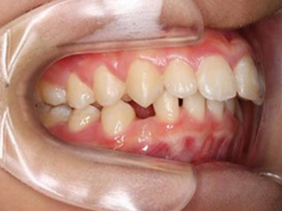 (小児)出っ歯の矯正の治療