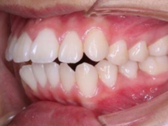 開咬矯正の治療例