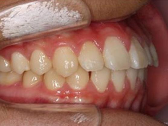 (小児)出っ歯の治療例