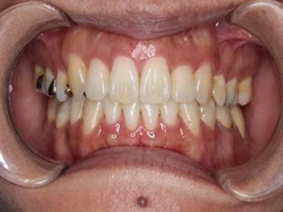 八重歯の治療例