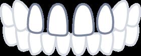 品川区のすきっ歯矯正症例|戸越銀座KT矯正歯科