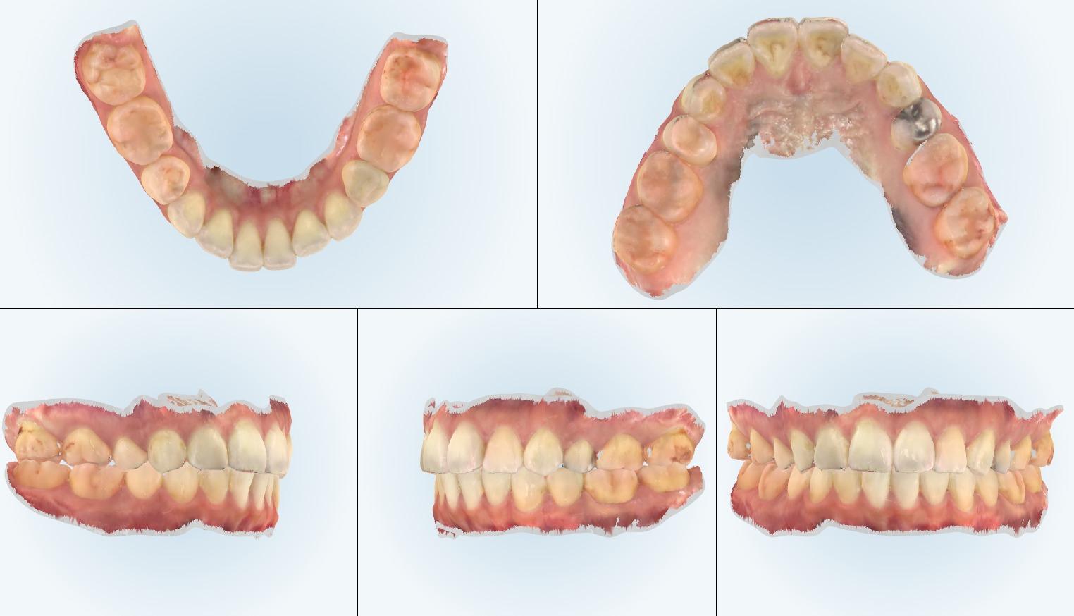 口腔内スキャナーを用いた矯正治療なら戸越銀座KT矯正歯科